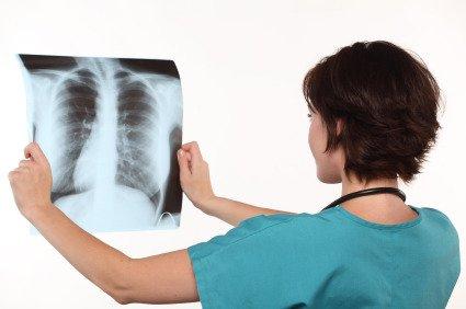 Cura della Tubercolosi